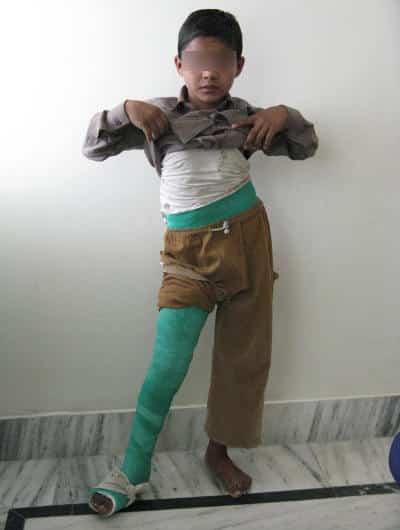 orthopedic problem in children