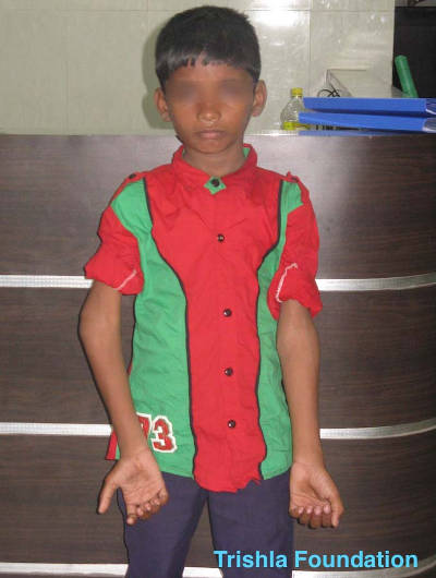 Cerebral Palsy treatment in India