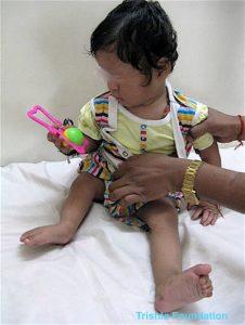 cerebral palsy treatment case 71