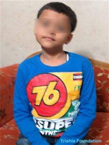 limb deformity treatment case 75