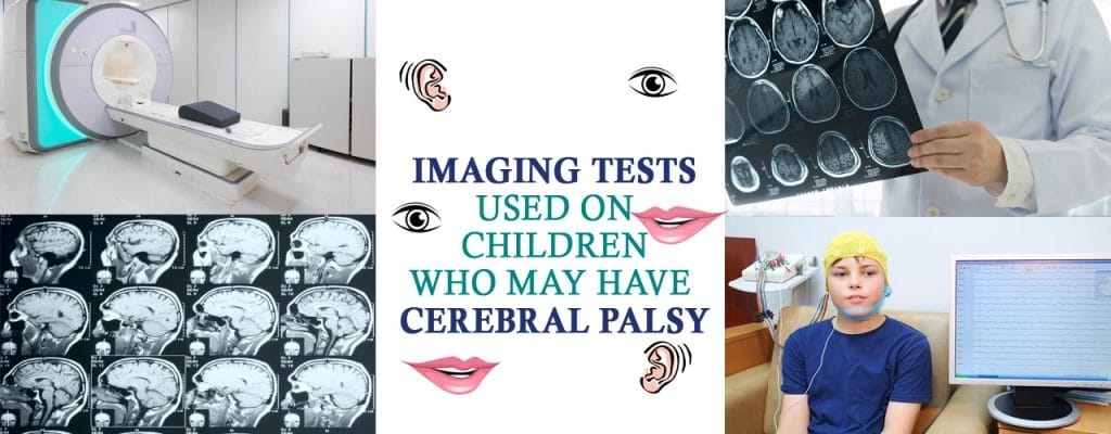 Cerebral Palsy Diagnosis